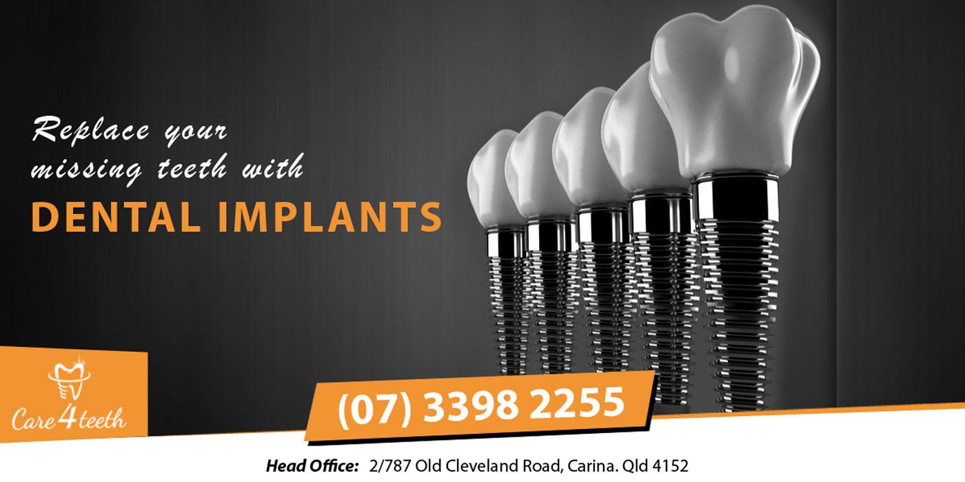 Dental Implant Carina Brisbane – Care 4 Teeth