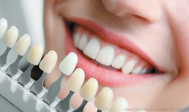 Cosmetic Dentistry Treatment
